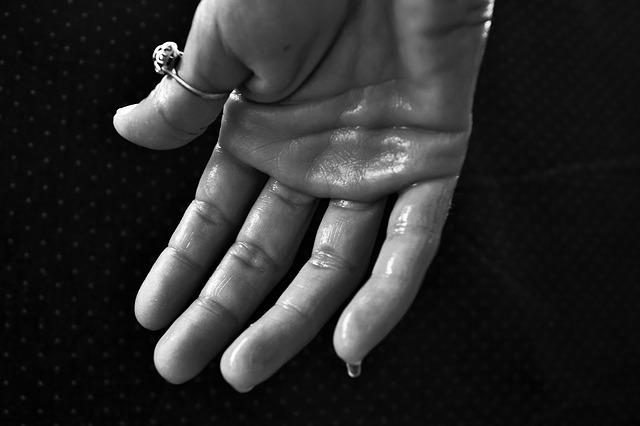 overmatig zweten handen